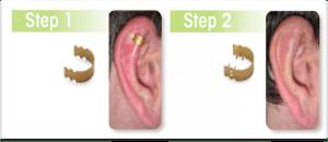 schema procédé Earfold en deux étapes