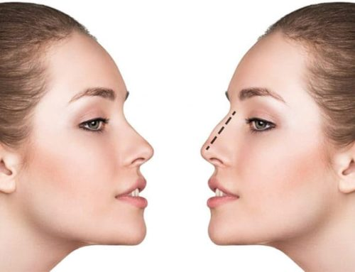 Rhinoplastie : mon nouveau nez sans chirurgie !